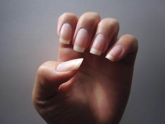 Cum tratezi infectiile fungice ale unghiilor in mod natural?